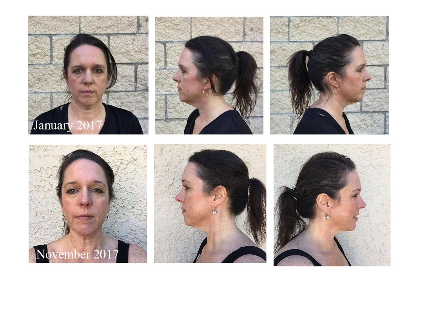 Face Yoga Testimonial Photo